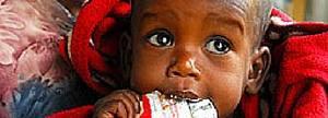 Tratamiento médico nutricional completo para un niño desnutrido