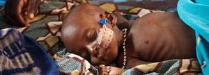 Proporcionas el tratamiento médico nutricional que le salvara la vida a un niño desnutrido con complicaciones médicas