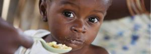 You provide medical treatment for several children with severe acute malnutrition with medical complications