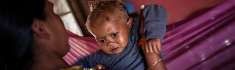INDIA Y LA DESNUTRICIÓN INFANTIL SEVERA