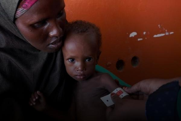 7 de cada 10 niños que sufren desnutrición viven en medio de una guerra.