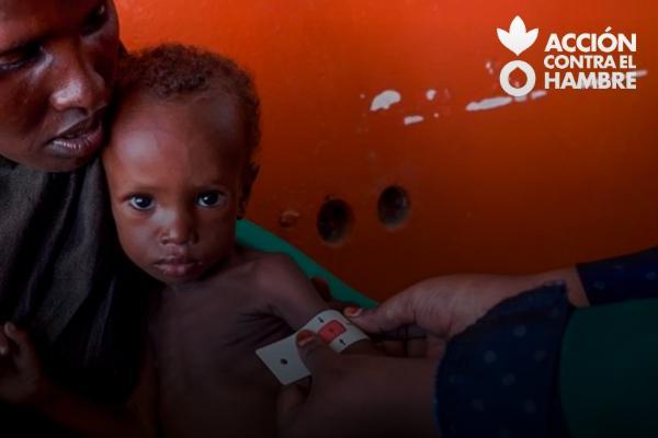 El hambre como arma de guerra