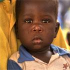 7 hechos que probablemente no sabes de la desnutrición