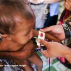 One in three Filipino under 5 children is stunted