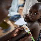 Salud y nutrición: cómo detectamos, tratamos y prevenimos la desnutrición