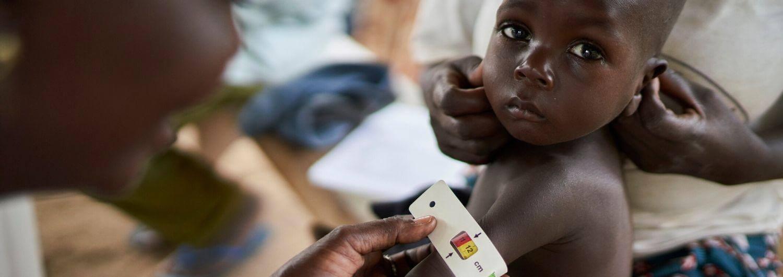 Camerún: la violencia dispara los niveles de desnutrición en el norte