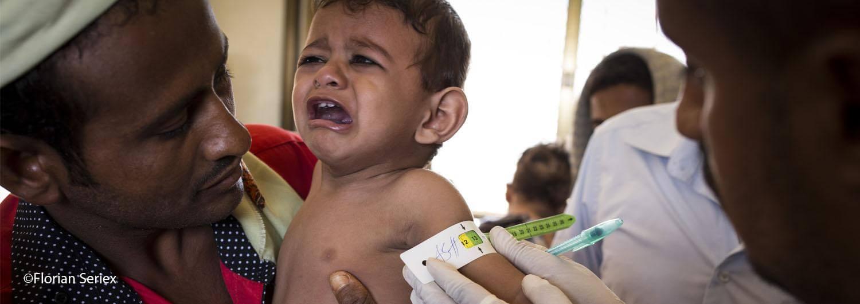 Dos años de guerra dejan al 60% de la población de Yemen en situación de inseguridad alimentaria