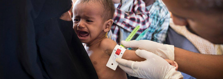 El hambre, arma en la guerra de Yemen